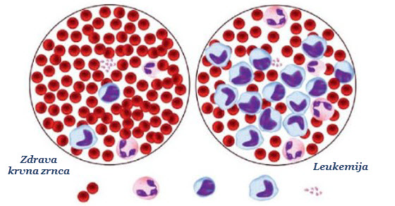 akutna_leukemija_simptomi